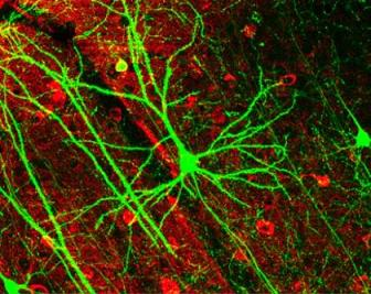 20091117185252-neuronas.jpg