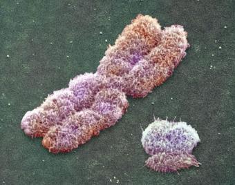 20100117142838-cromosomas-sexuales.jpg