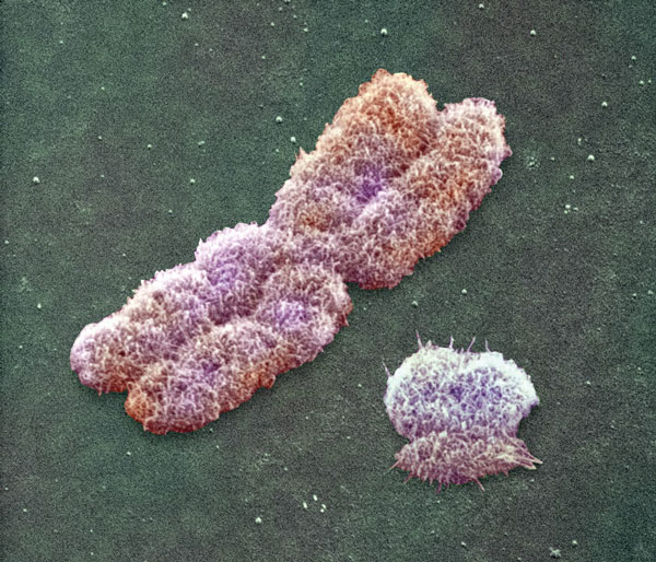 20100221130349-74633-cromosoma.jpg