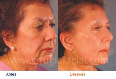 20111124133227-rejuvenecimiento-facial.jpg