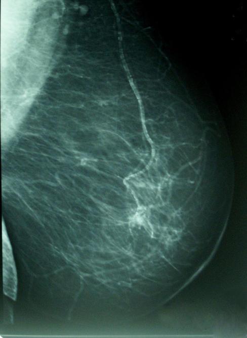 20120222113613-las-mujeres-nacidas-de-madres-con-edad-avanzada-tienen-mas-riesgo-de-cancer-de-mama-image488-.jpg